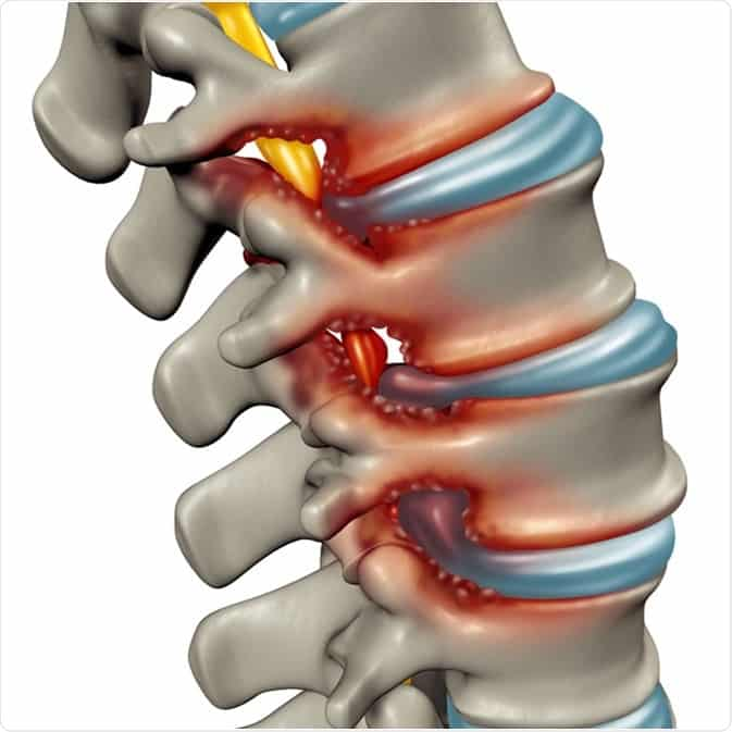 Spinal Stenosis chiropractor Singapore