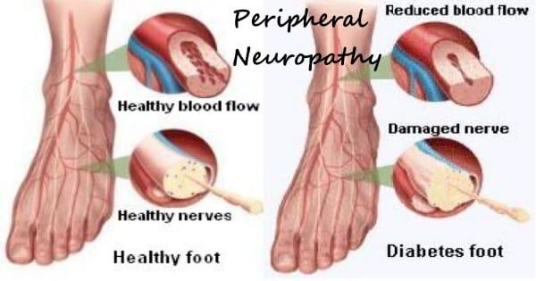 diabetic peripheral neuropathy 2
